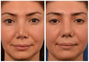 مشکلات قابل حل در جراحی بینی ترمیمی