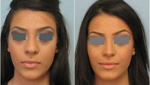 نتایج جراحی بینی گوشتی