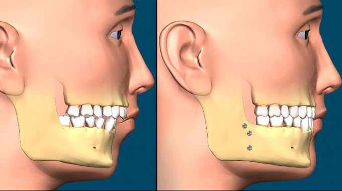 دوران نقاهت و بهبودی پس از عمل جراحی زیبایی چانه
