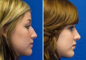 اقدامات قبل از جراحی بینی استخوانی