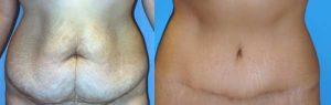 آیا پس از جراحی زیبایی شکم ( کوچک کردن شکم) اسکار و جای زخم باقی خواهد ماند ؟