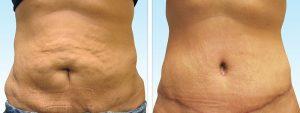 چگونه شکم بزرگ و پر از چربی روی سلامتی تأثیر دارد؟