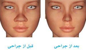 اقدامات لازم برای کاهش ورم بینی بعد از جراحی