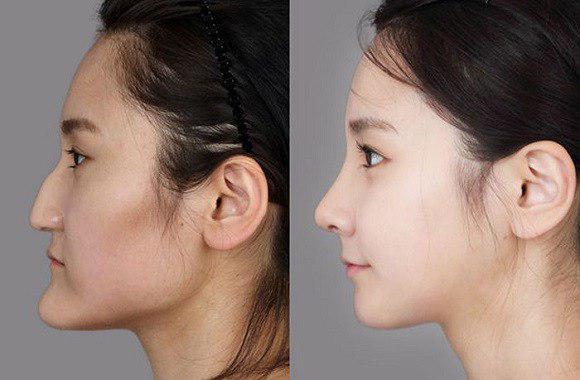 خطرات احتمالی عمل جراحی زیبایی فک