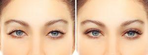 اقدامات قبل و بعد از جراحی زیبایی پلک