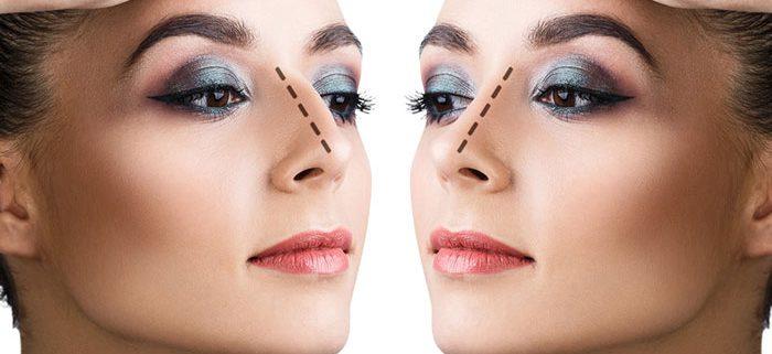 جراحی بینی استخوانی و نتیجه آن