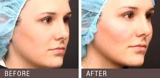 جراحی پروتز صورت