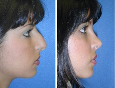 اقدامات قبل ازجراحی بینی استخوانی و نتیجه آن