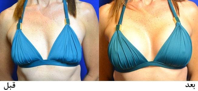 روش غیر جراحی برای بزرگ کردن اندازه سینه ها