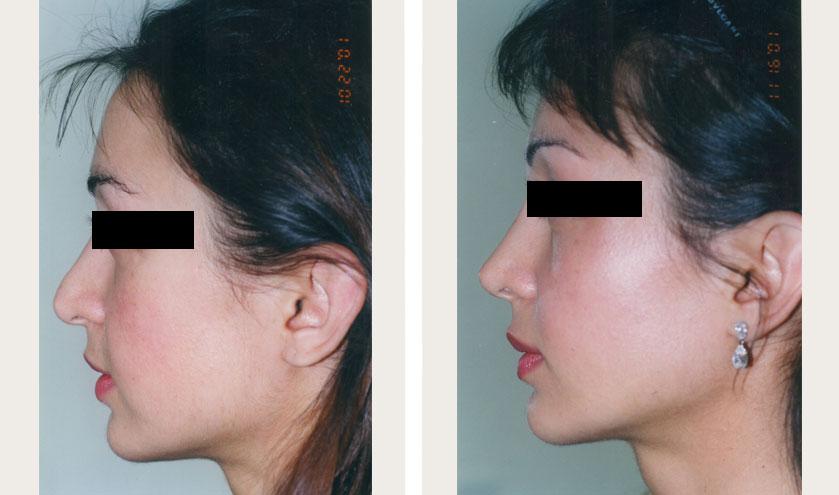 معاینات بینی قبل از جراحی بینی فانتزی