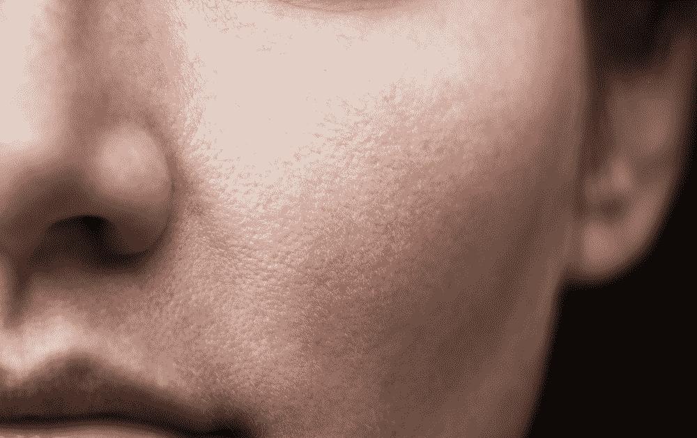 جراحی کوچک کردن پره های بینی