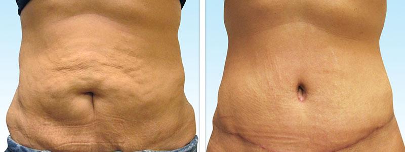 جراح موفق در زیبایی بدن