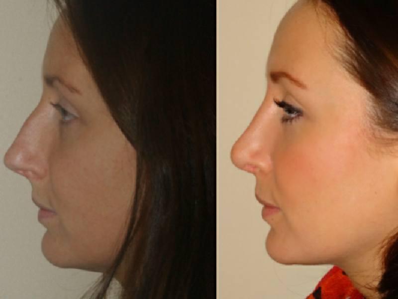 nose surgery12