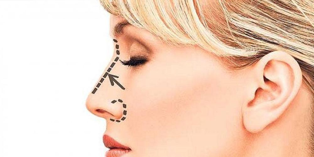 nose surgery14