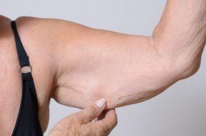 هزینه جراحی لیپوساکشن چقدر است ؟