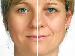 توصیه جراح پلک زیبایی برای بعد از جراحی پلک