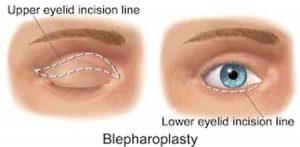 جراح خوب در زیبایی پلک صورت چگونه شما را برای جراحی لیفت ابرو یا بالا کشیدن ابرو ارزیابی میکند؟