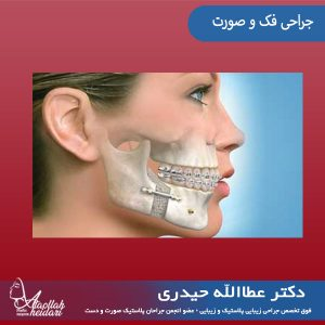 جراحی فک و صورت