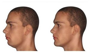 عوارض احتمالی جراحی زیبایی چانه