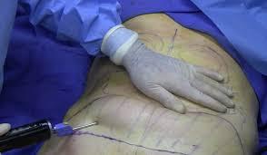 جراحی شکم با لیپوماتیک