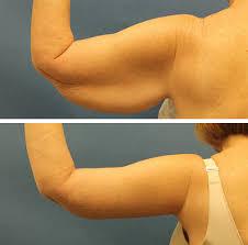 جراحی لاغری بازو