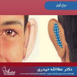 جراح گوش در تهران
