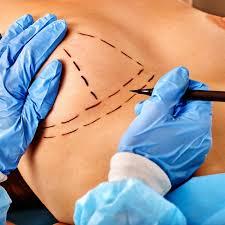 بهترین جراح پروتز سینه در تهران