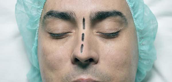 طریقه عمل بینی